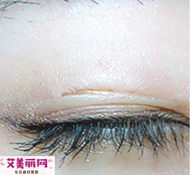 单眼皮怎么贴双眼皮贴 贴网状双眼皮贴的方法