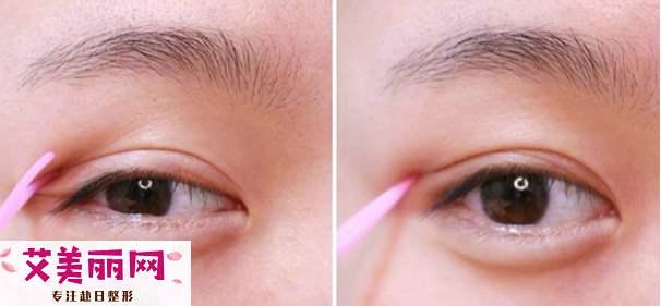 双眼皮胶水怎么用 双眼皮胶水使用方法