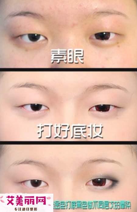 为什么双眼皮贴撑不起 新手这样贴双眼皮贴