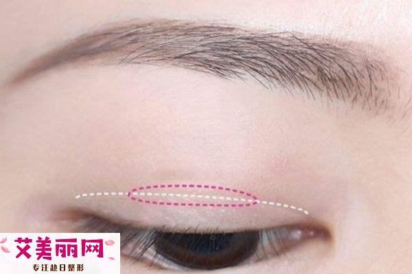 蕾丝双眼皮贴适合的眼型 教你贴出最自然的双眼皮
