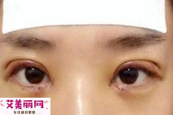 全切双眼皮肉条和肿的区别 有肉条的原因