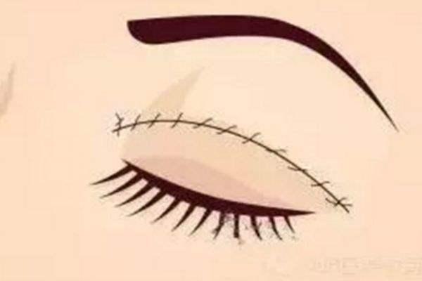割完双眼皮多久可以洗脸
