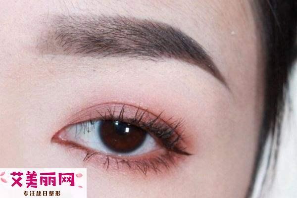 肿眼泡的人做双眼皮好吗 不同类型的肿泡眼解决办法
