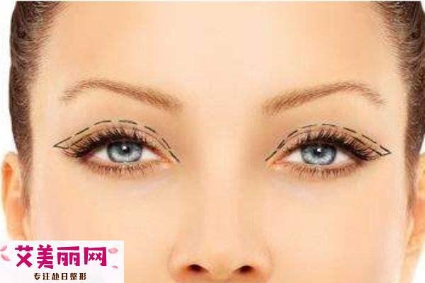 双眼皮是怎么形成的呢 双眼皮手术的工作原理是什么呢