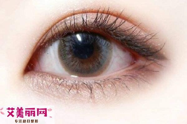 长期戴双眼皮贴是不是会变成双眼皮呢