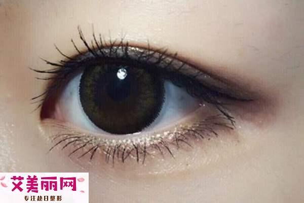 冬季做双眼皮术好吗 冬季做双眼皮术恢复要多久