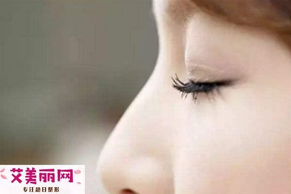 肿泡眼适合做什么双眼皮 肿泡眼适不适合做双眼皮