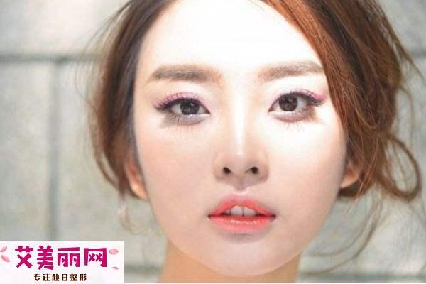 韩式三点双眼皮与全切双眼皮有什么不同 各有优缺点